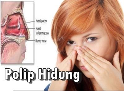 polip hdung